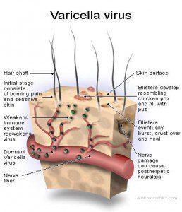 Varicella_virus